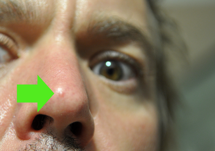 Don Goede: I Have A Telangiectasia On My Nose